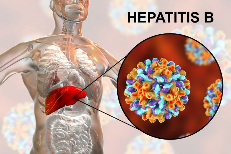 hepatitis b hbv